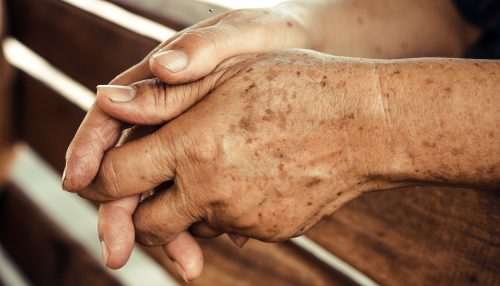 hands of a female elderly full of freckles