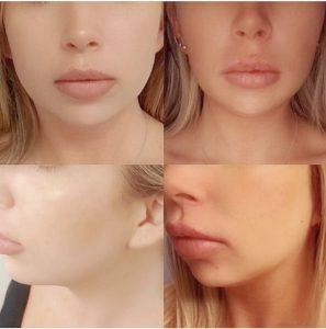 PDO Thread Lifting and Facial Contouring