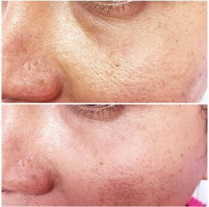 PDO Thread Lifting and Facial Contouring