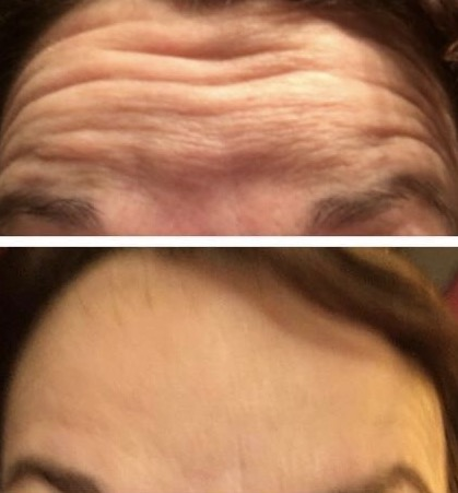 Botox before and after of no wrinkles in after