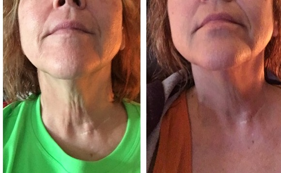 loose skin treatment for neck and chin before and after