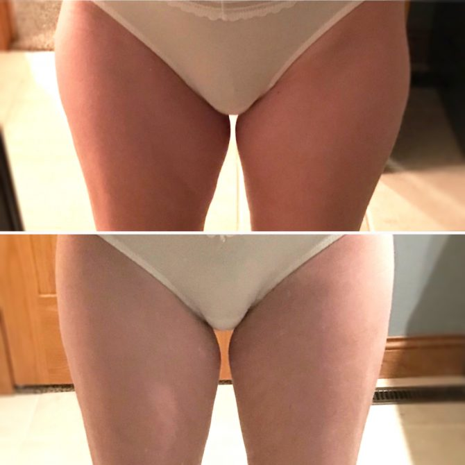vanquish results on thighs