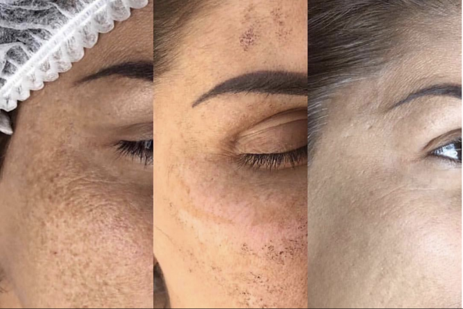 IPL before and after effective treatments