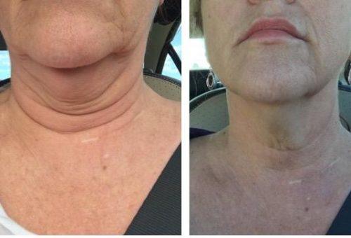 Kybella SkinPen Double chin saggy neck skin