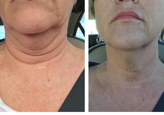 Kybella SkinPen Double chin saggy neck skin