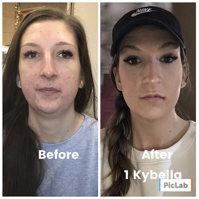 Kybella double shin treatment before and after