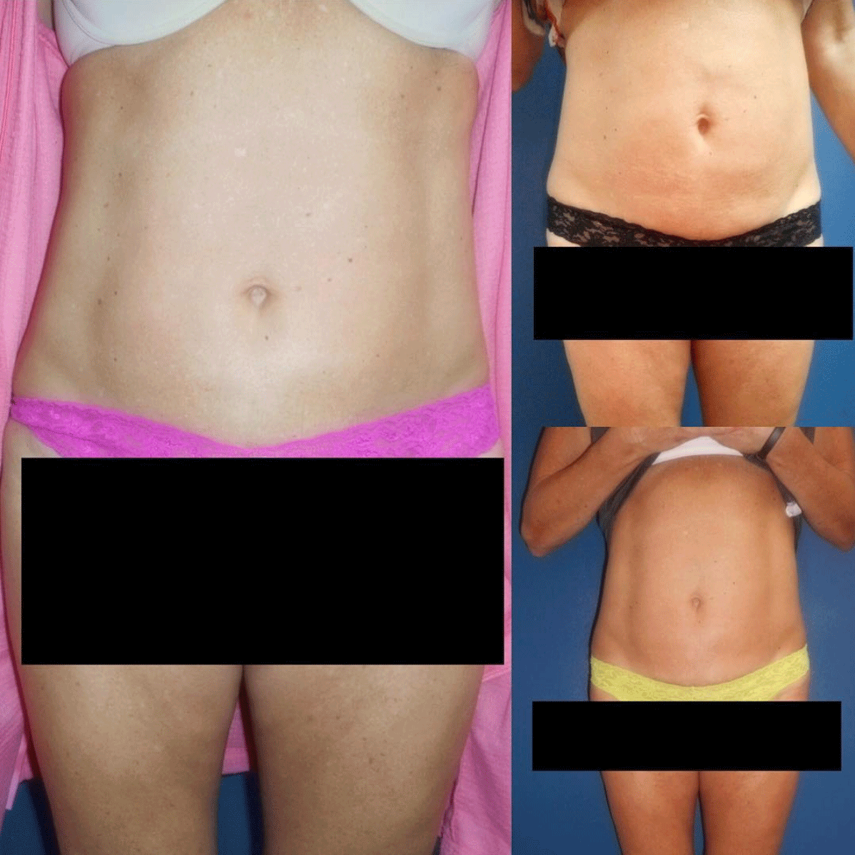 before and after of belly fat treatment