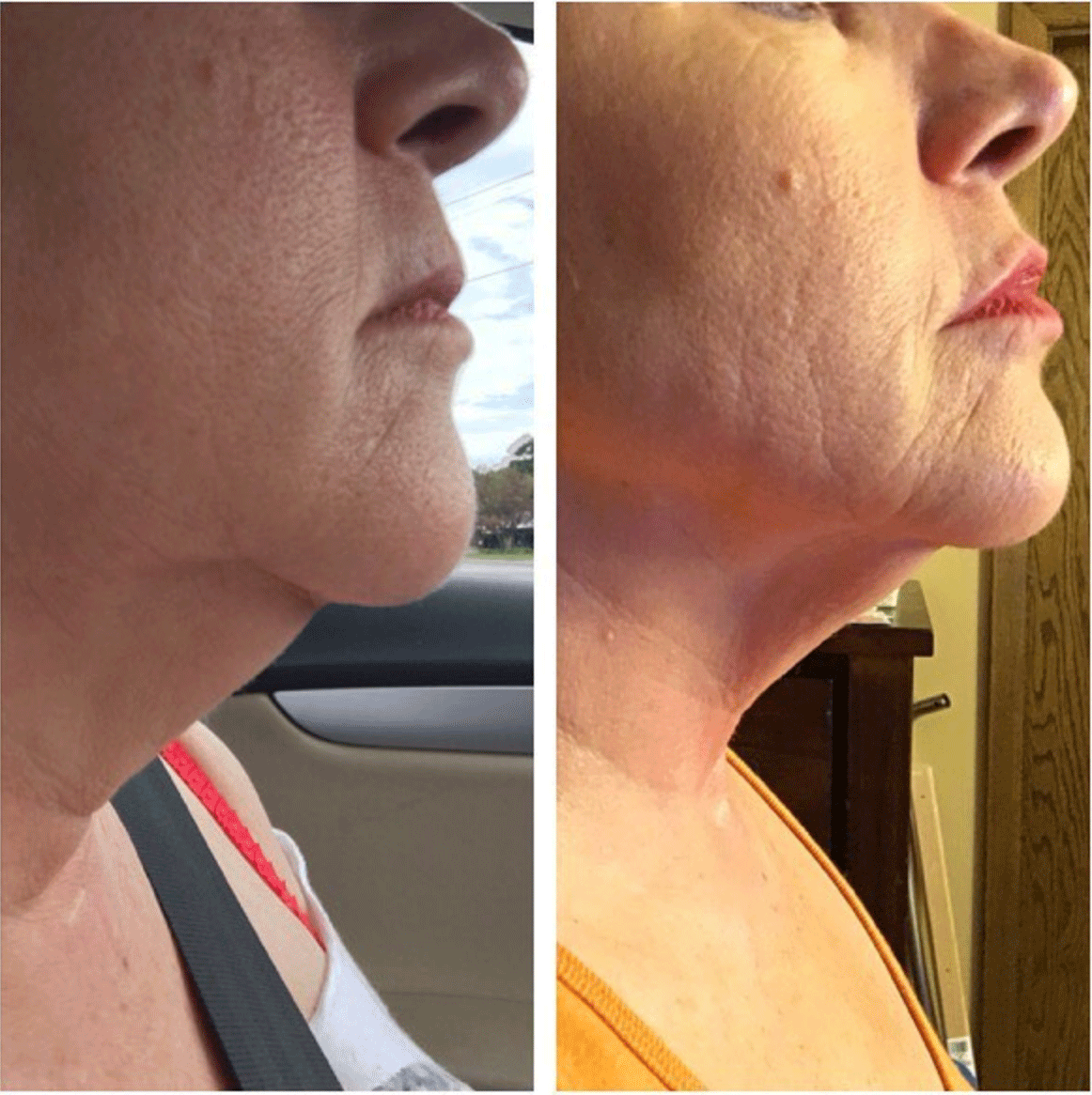 double chin, turkey neck treatment before and after