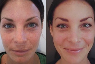 before and after of IPL photofacial
