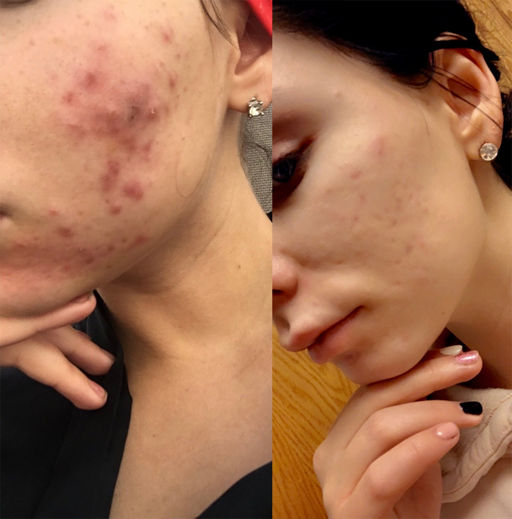 ACNE BEFORE AFTER, shows clear skin in after