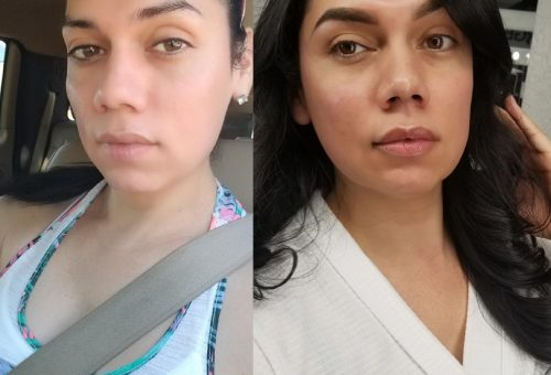 cheeks and lips filler Before After Restyland