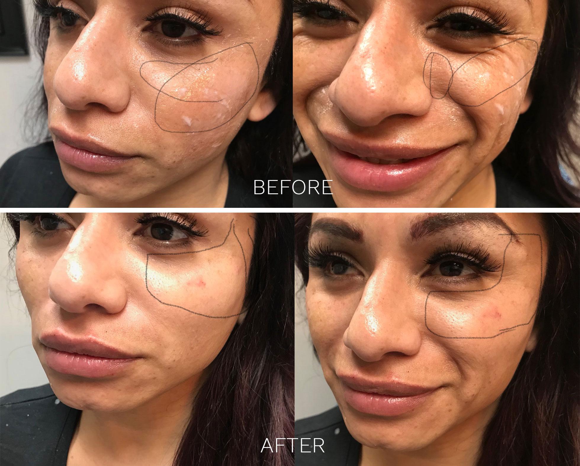 Joules MedSpa and Laser Center Before & After