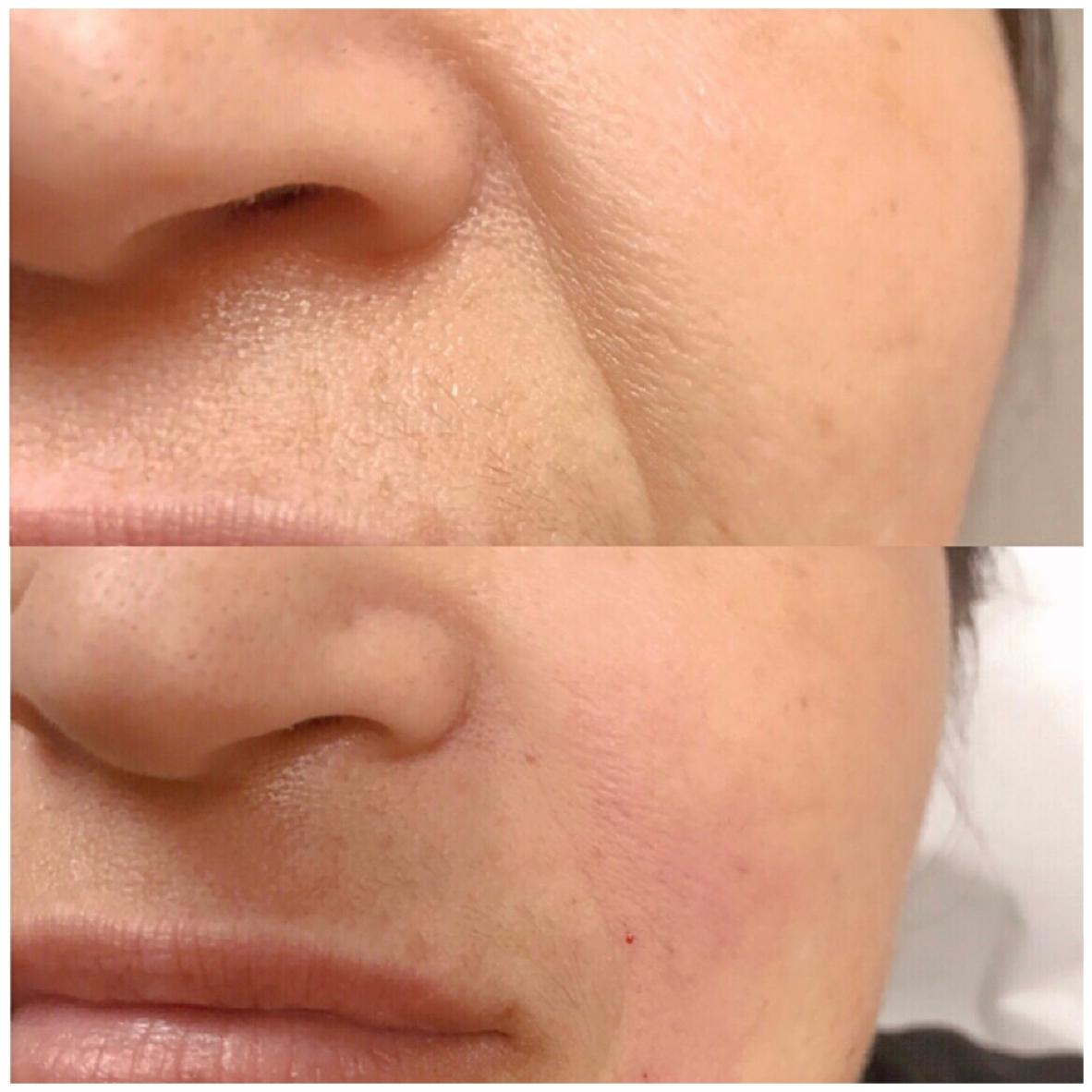 Joules MedSpa and Laser Center Nasolabial Fold Correction