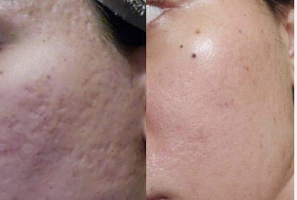 SkinPen
