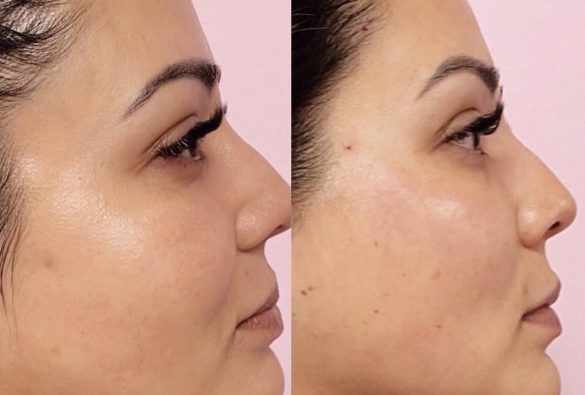 Soft PDO Thread Lift in Cheeks & Brows
